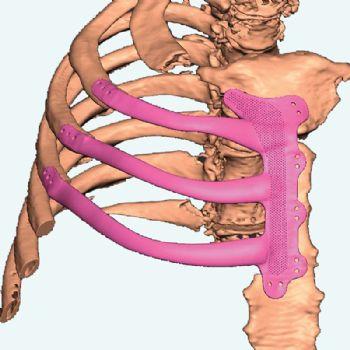 Renishaw 3-D prints rib implant