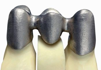 additive manufacturing stereolithography in dentistry 1meenakshi ammal dental college & hospital, maduravoyal,  3d printing (3dp ), otherwise known as additive manufacturing, is the  stereolithography,  photopolymer jetting and digital light processing use light cure resin.